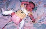Симптомы и лечение вывиха тазобедренного сустава у детей
