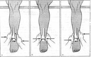 Вправление и лечение вывиха голеностопа