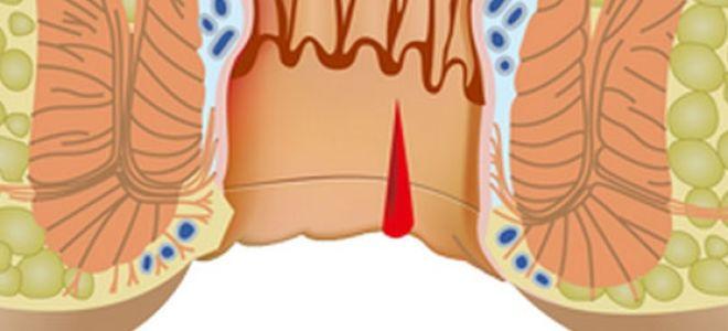 Анальное кровотечение — причины и лечение