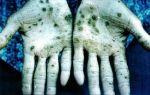 Отравление плесенью и последствия для органимзма