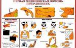 Растяжение мышц и связок шеи у взрослых и детей