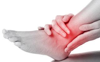 Боли в голеностопном суставе — причины и лечение