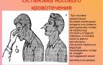 Как остановить носовое кровотечение