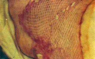 Заживление ран после ожоговой травмы