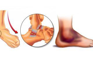 Виды травм голеностопа и симптомы повреждения