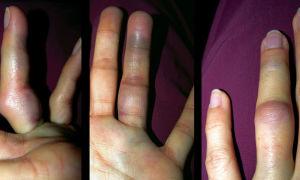 Симптомы и лечение вывиха пальца на руке