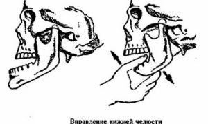 Симптомы и лечение привычного вывиха челюсти